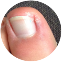 ingegroeide-nagel