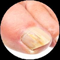 schimmel-nagel